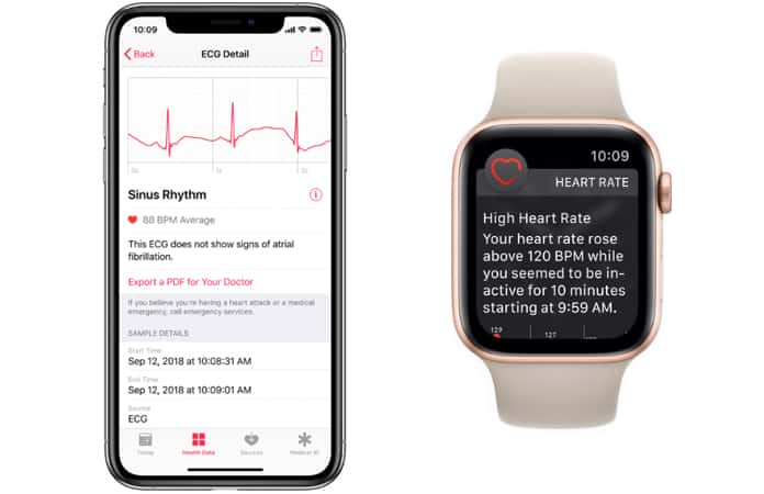 get ecg on apple watch
